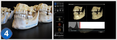[Medical] De la photo du scanner au modèle 3D avec Bespoke Modeling