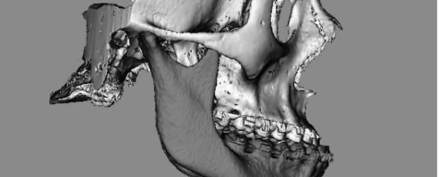 3D Systems achète Medical Modeling